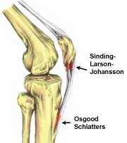 Knee Pain in Children « Apex Physiotherapy Apex Physiotherapy