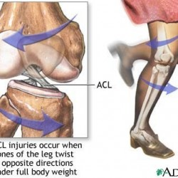 ACL Treatment and Rehabilitation