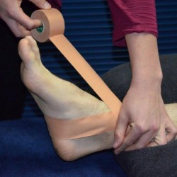 Do I need physio for my sprained ankle?