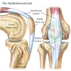 Physiotherapy for Patellofemoral Joint Syndrome