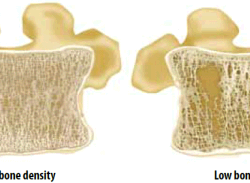 Bone Mineral Density and Stress Fractures